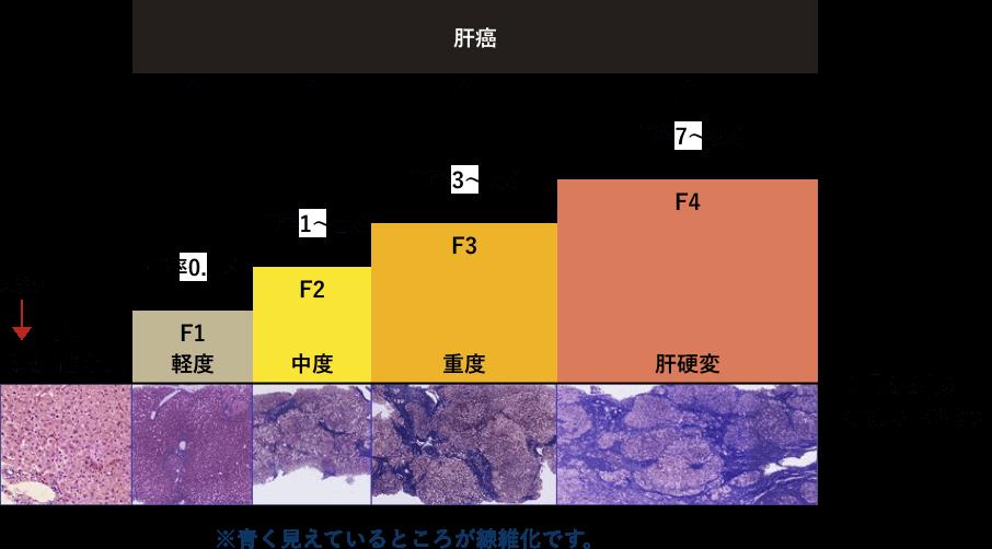 肝臓の線維化の進展と発癌率の図