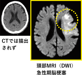 CTでは描出されなかった、頭部MRI(DWI)急性期脳梗塞の写真