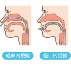 経鼻内視鏡(鼻からカメラ)のイラスト