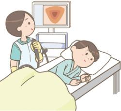 下部消化管内視鏡検査(大腸カメラ)のイラスト